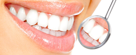 The Ultimate Guide to Teeth Whitening in New Zealand